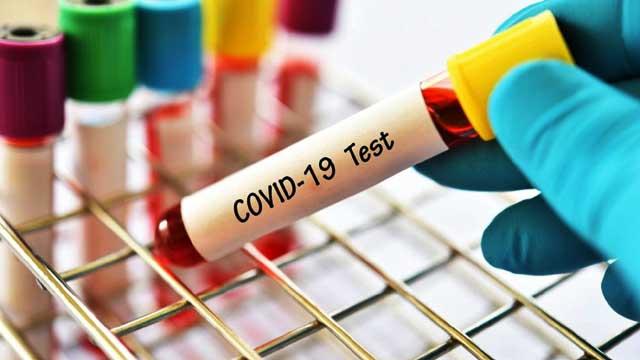 Corona Update 3 July: 44,111 corona new cases found in India